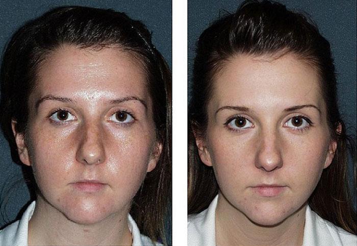 Фруктовый пилинг до и после - фото