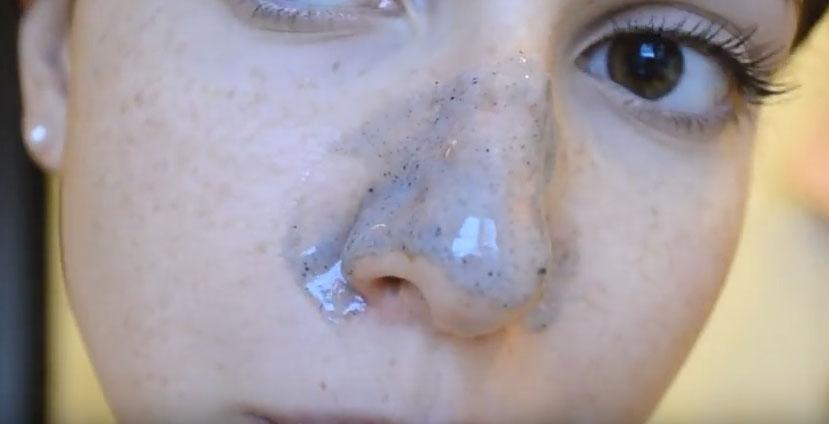 Народные средства лечения рубцов после акне