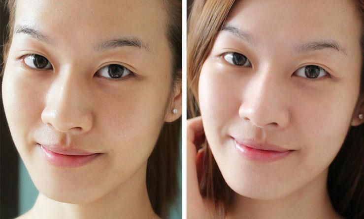 миндальный пилинг фото до и после