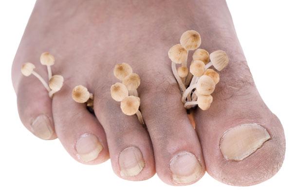 Грибковые заболевания ногтей: какова их природа?