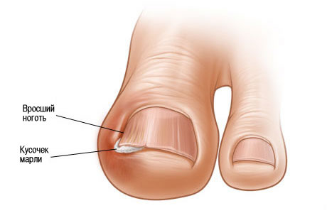 Ногти на ногах красим