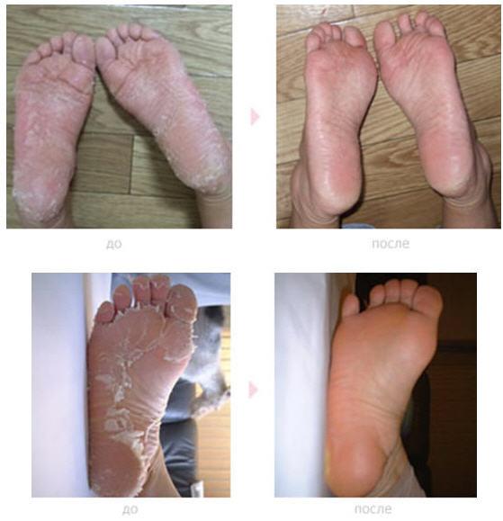 Фото ног после носочков для педикюра