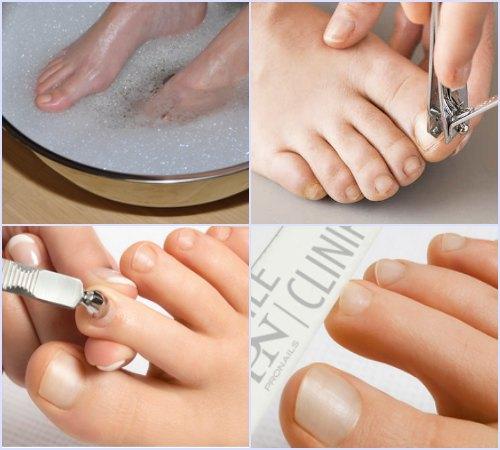 Как делать обрезной маникюр на ногах