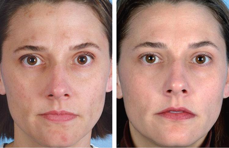 алмазный пилинг фото до и после