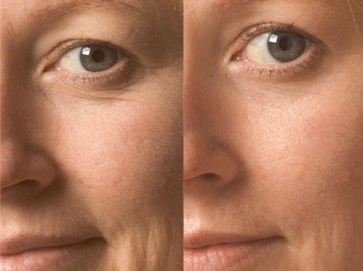 Нюансы алмазной шлифовки кожи лица Отзывы о пилинге