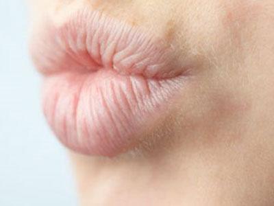 Гиалуроновая кислота ушли из губы